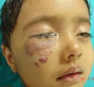 hemangiomas-6