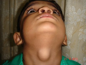 thyroglossal cyst (4)