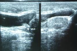 ureteric-re-implantation-3