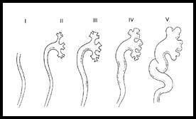 vesicoureteric-reflux-1